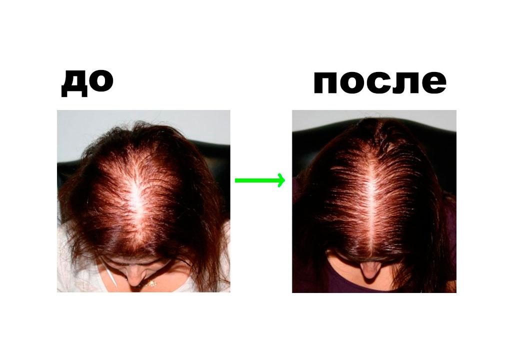 Екатерина Тимофеева спустя 2 месяца применения Perfleor
