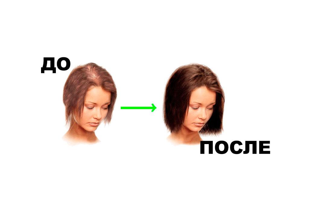 Елена Пронина после курса Perfleor - за 3 месяца