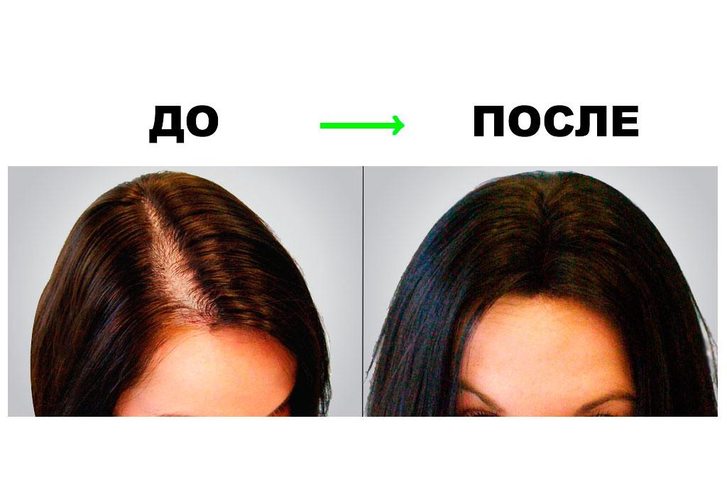 София Куревич после 4 месяцев применения Perfleor